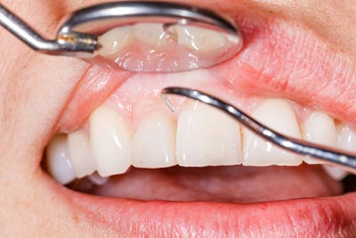 caringbah gum disease treatment