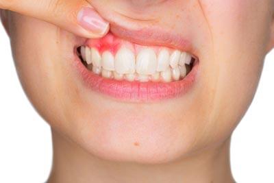 gingivitis treatment caringbah
