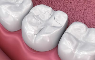 tooth colored fillings caringbah