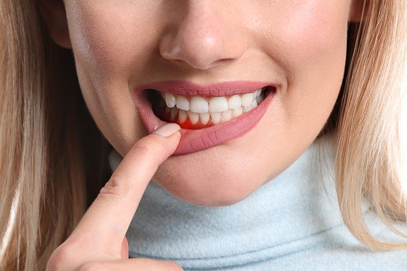 gums-bleeding