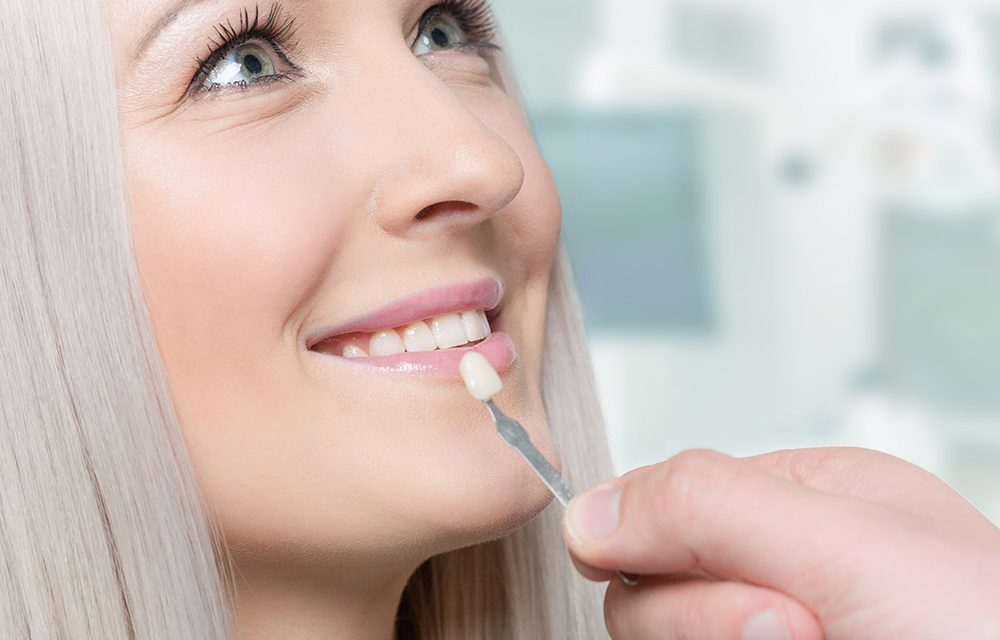 10-facts-about-dental-veneers